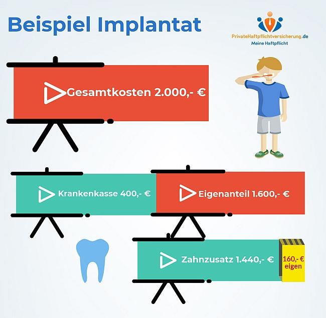 Zahnzusatzversicherung gegen Kosten Schrecken beim Zahnersatz!